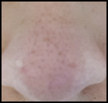 acne nose by TaylorAhlgreen