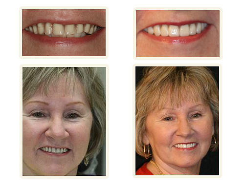 Cosmetic dentist chicago by Ivan304